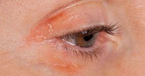 Alergie na umělé řasy - jak ji předcházet?